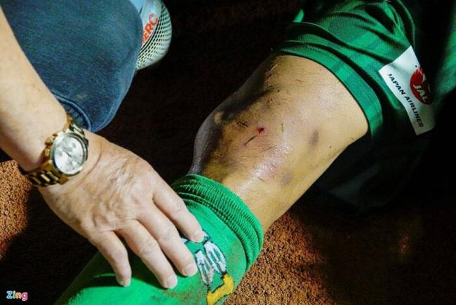 Cầu thủ Sài Gòn FC bị đạp móp đầu gối, người tung chân vô tội?!  - Ảnh 1.