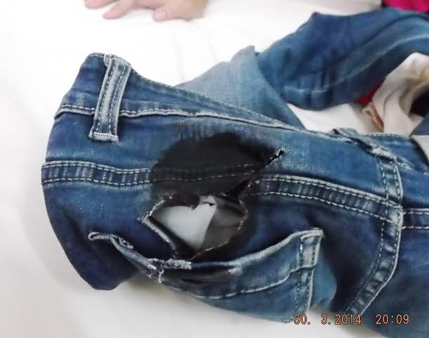 Vết rạch trên quần.