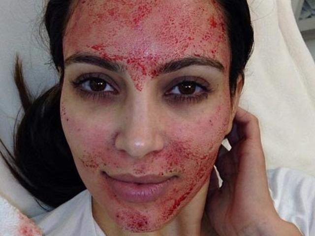 """Học Kim """"siêu vòng 3"""", cô gái mạo hiểm làm đẹp bằng máu người"""