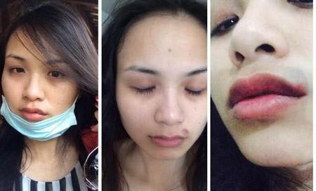 Diễm Hương công khai những vết tích trên gương mặt do bị chồng cũ bạo hành. Ảnh: Báo Công Luận