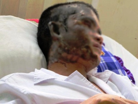 Anh A. bị tạt axít gây bỏng nặng đang nằm điều trị tại BV Chợ Rẫy