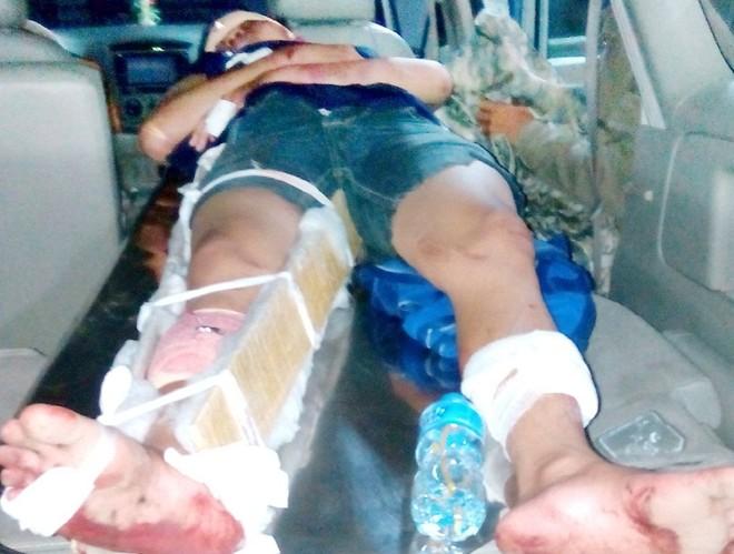 Anh Toàn bị thương khi đưa đi cấp cứu.