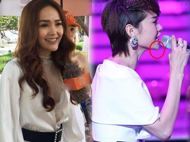 Minh Hằng, hot girl Kelly và những mỹ nhân Việt từng lộ cằm méo lệch
