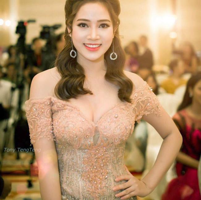 my nu khong mac noi y dong canh ven ao cho trung hieu xem not ruoi hinh anh 9