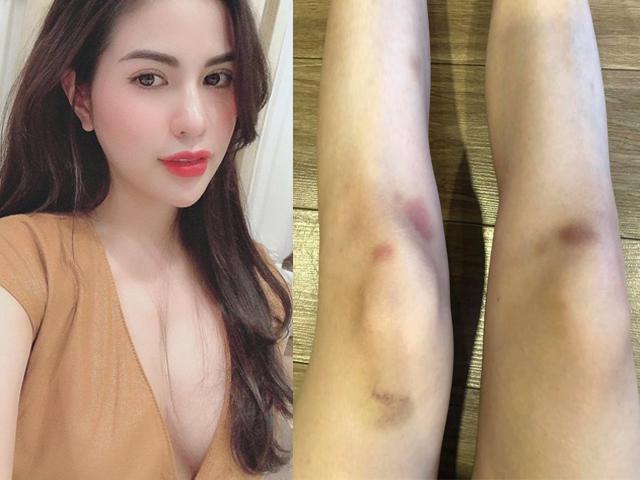 """Vợ hot girl của Việt Anh gây bàn tán vì hình ảnh """"bạo lực gia đình"""""""