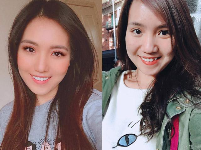 Việt kiều Úc chi 147 triệu đồng niềng răng, kết quả đến người thân cũng bất ngờ