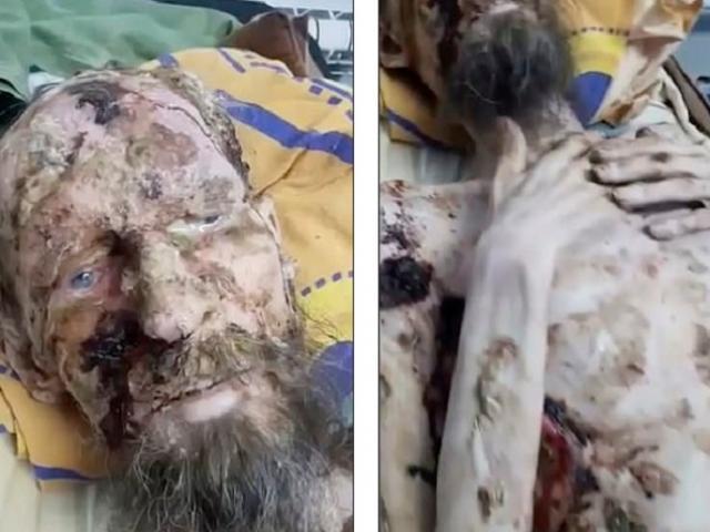 """Thông tin mới về người như xác ướp """"bị gấu nhốt trong hang ở Nga"""" cả tháng"""