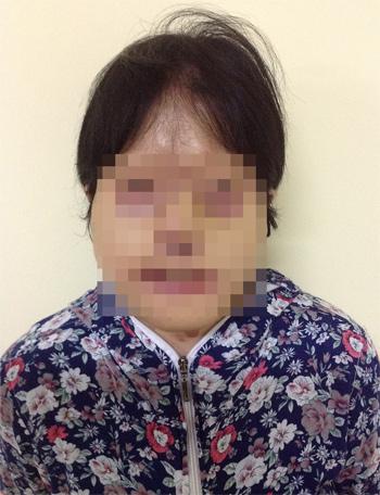 Sau 9 tiếng, chị Thúy đã được tái tạo một khuôn mặt mới từ da lưng. Bác sĩ hứa hẹn sẽ giúp chị lấy lại 80% khuôn mặt cũ. Ảnh: Bệnh viện.