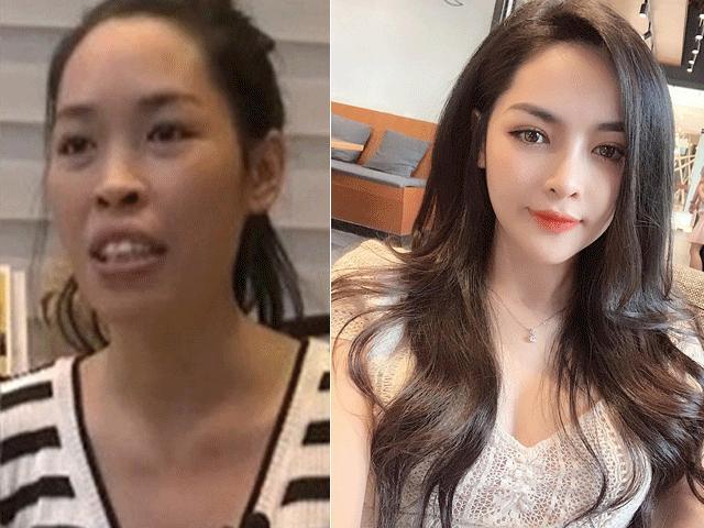 """Cô gái Nam Định lột xác ngoạn mục nhờ """"dao kéo"""" giờ ra sao?"""