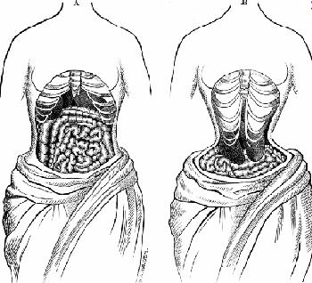 Phẫu thuật loại bỏ sương xườn trước (trái) và sau