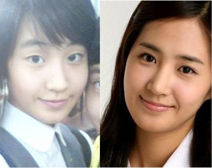 Ca sĩ Yuri (SNSD) rạng rỡ hơn sau phẫu thuật mí mắt.