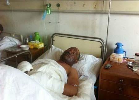 Bố của bé Duoduo là ông Zhang Qiusheng, 48 tuổi, cũng bị bỏng nặng.
