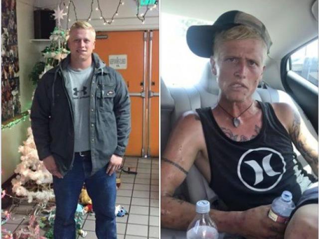 """Mỹ: thanh niên lực lưỡng xuống sắc đến """"rùng mình"""" sau 7 tháng nghiện ma túy"""