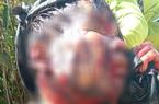 Quảng Nam: Bị gấu rừng tấn công khi lên thăm vườn sâm, người đàn ông trong tình trạng nguy kịch