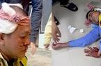 Điều tra vụ hai nhân viên trạm BOT Ninh Xuân bị hành hung dã man