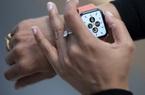 Có tiền thưởng Tết trong tay, chọn Apple Watch nào đây?