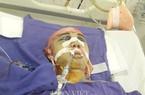 Quảng Ninh: Kỹ sư vác cột thủy lực bị tai nạn nghiêm trọng trong lò