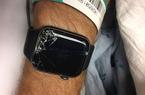 Apple Watch giúp cứu sống 1 người đàn ông bị bất tỉnh