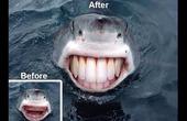 Nhổ răng không đau, chắc chắn thế