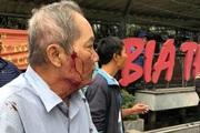 Hà Nội: Điều tra vụ cụ ông 80 tuổi chạy xe ôm bị đánh đến nhập viện