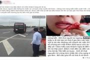 """Người phụ nữ """"tố"""" bị tài xế xe Limousine trả khách giữa đường, ném hành lý vào mặt làm chảy máu mồm"""