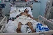 Bà Rịa - Vũng Tàu: 7 trường hợp phải cấp cứu vì ngộ độc do ăn nhộng ve sầu có nấm ký sinh