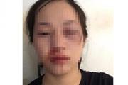 """Công an lên tiếng về việc CSGT bị tố """"dùng dùi cui vụt vào mặt người phụ nữ vi phạm"""""""