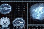Việt Nam ứng dụng trí tuệ nhân tạo hỗ trợ điều trị ung thư