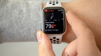 """Đồng hồ thông minh Apple Watch và """"câu chuyện thần kỳ"""" cứu sống chủ nhân"""