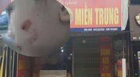 Vụ 2 nhân viên quán bánh xèo ở Bắc Ninh: Đau xót nhìn thân thể chằng chịt sẹo của cậu bé giúp việc