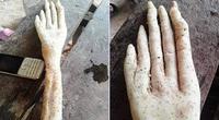 """""""Nổi da gà"""" phát hiện củ khoai kỳ lạ có hình bàn tay người"""