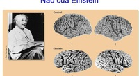Bộ não của các thiên tài hoạt động như thế nào?