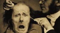 10 thí nghiệm tàn bạo nhất trên cơ thể người