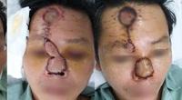 Người đàn ông 42 tuổi có cái mũi đáng sợ sau khi xuất hiện mụn nhỏ