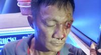 Nạn nhân kể phút kinh hoàng bị súng bắn ở bến xe trung tâm Quy Nhơn