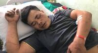 17 nạn nhân trong vụ lật xe khách tại Kon Tum đã được xuất viện