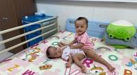 Những hình ảnh đầu tiên của ca đại phẫu thuật tách hai bé gái song sinh dính liền