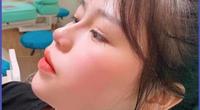 Bạn gái Quang Hải phẫu thuật thẩm mỹ vì... bị chê nhiều?