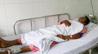 TP.HCM: Thêm một bệnh nhân bị rắn hổ mang chúa cắn