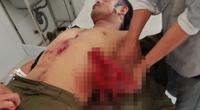 Chế mìn đánh cá gây nổ khiến 6 người bị thương, 1 người mất bàn tay trái