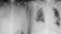 Bệnh nhân Covid-19 đầu tiên được ghép phổi từ người hiến tặng còn sống