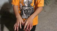 Chủ tịch nước yêu cầu làm rõ và xử lý nghiêm vụ cha đánh con nát tay ở TP.HCM