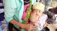Bé trai 1 tháng tuổi có khối u bạch huyết khổng lồ