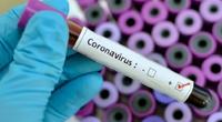 """Biến thể SARS-CoV2 ở Pháp có thể """"né"""" được xét nghiệm PCR"""