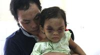 Bình Dương: Bé gái 3 tuổi bị bạo hành xuất viện, về ở với cha
