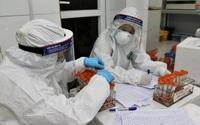 Việt Nam có 125 sản phẩm test xét nghiệm Covid-19