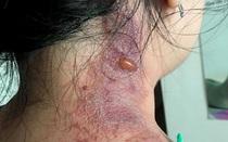Cảnh báo viêm da do kiến ba khoang chuyển nặng, vì tự mua thuốc chữa