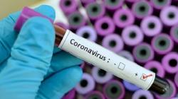 Tìm ra nguyên nhân xét nghiệm Covid-19 bằng PCR cho kết quả dương tính giả