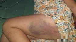 Tạm đình chỉ đứng lớp đối với cô giáo đánh bé gái lớp 3 thâm tím đùi