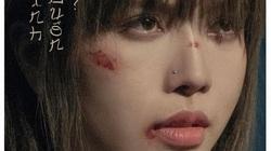 """""""Bạn gái tin đồn"""" Sơn Tùng MTP gây hoang mang khi để lộ gương mặt nhiều vết xước"""
